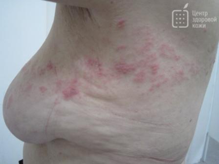 хронический простатит лечение медом